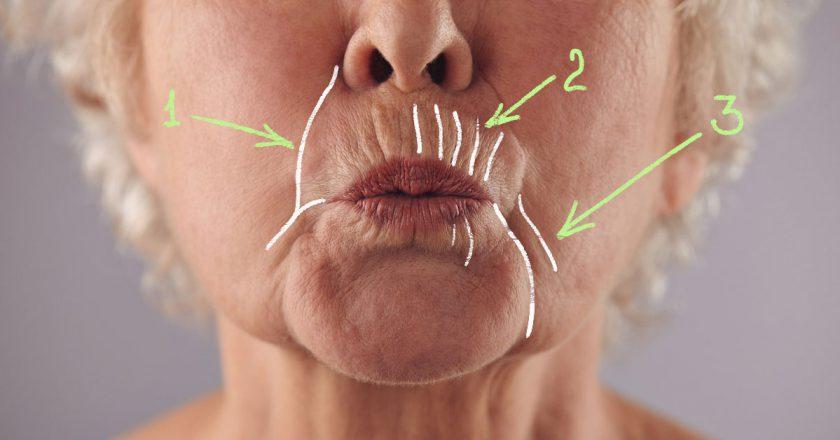 Есть два участка женского лица с наиболее уязвимой кожей: вокруг глаз и над верхней губой. Не так давно мы уже рассказывали вам, как бороться с первой проблемой, а как насчет второй? Вертикальные морщины над верхней губой называют кисетными. Они появляются из-за слабой подкожно-жировой клетчатки и минимального количества сальных желез. При произношении звуков круговая мышца рта активно сокращается, кожа растягивается, кровоснабжение ухудшается, ткани теряют коллаген. Уже в 40 лет это реальная проблема. Нет, не проблема, а настоящий враг красоты. Но, говорят, если знаете врага в лицо, справиться с ним в разы проще. Мы готовы вам в этом помочь. Для начала нужно заняться профилактикой: чтобы уже существующая проблема не усугубилась, пейте много воды, спите не менее 7 часов и пользуйтесь только качественной косметикой. А теперь давайте посмотрим, как убрать те морщины, которые уже успели стать настоящими бороздами. Маски-помощницы Натрите огурец на очень мелкой терке. Смешайте с 1 ч. л. жирной сметаны и 0,5 ч. л. жидкого мёда. Нанесите на зону над верхней губой на 20 минут, а затем умойтесь без мыла. Соедините половинку банана со столовой ложкой сметаны. Нанесите маску на четверть часа, а затем просто смойте. Разомните вилкой 2 ч. л. консервированного горошка. Смешайте с 1 ст. л. кефира. У вас должна получиться достаточно густая масса, которую необходимо равномерно распределить по проблемной зоне на 15 минут. Приложите немного квашеной капусты на 10 минут. Это самая простая маска, но нереально эффективная. В соотношении 1 : 1 смешайте сок алоэ и жидкий мёд. Нанесите на 15 минут, смойте прохладной водой. А еще можно приготовить косметический лёд, который ускорит приток крови и сможет принести даже двойную пользу! Просто пропустите 0,5 кг одуванчиков через соковыжималку, добавьте в жидкость 1 ст. л. оливкового масла, разложите по формам и используйте утром и вечером. Как еще бороться с ними Старайтесь контролировать свою мимику. Те, кто сжимают губы слишком плотно, обзаво