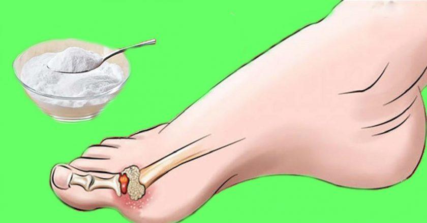 Подагра, стоп! Как всего 1 средство поможет избавиться от боли и внешних признаков