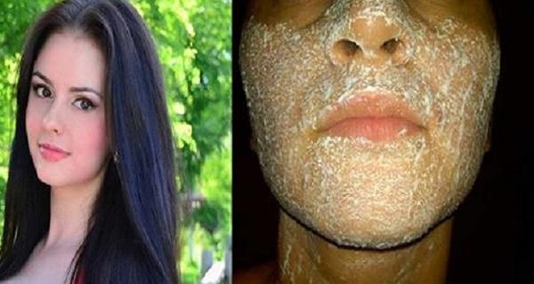 Используйте это средство 3 ночи подряд, избавьтесь от пятен и приобретите сияющую кожу!