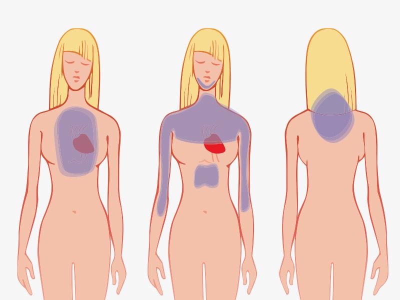 Как распознать сердечный приступ за месяц до того, как он случится